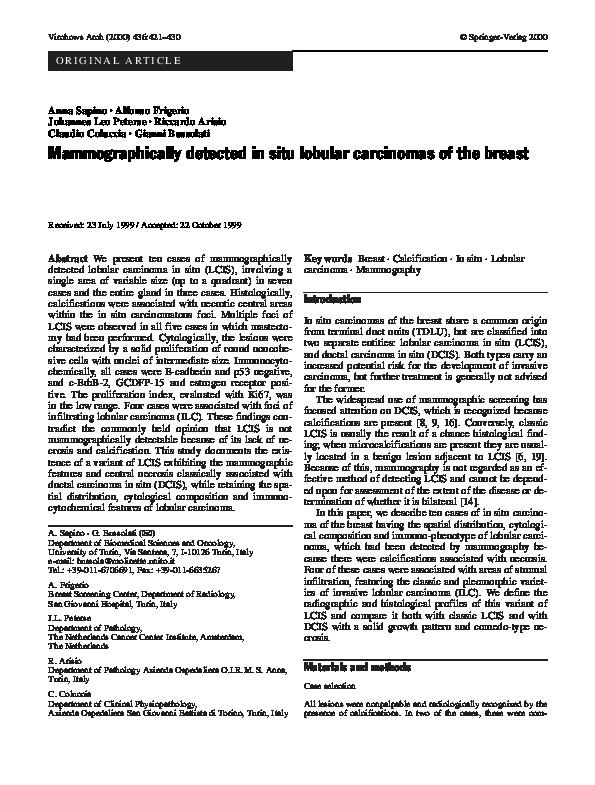 Carcinom lobular invaziv - leacurinaturiste.ro