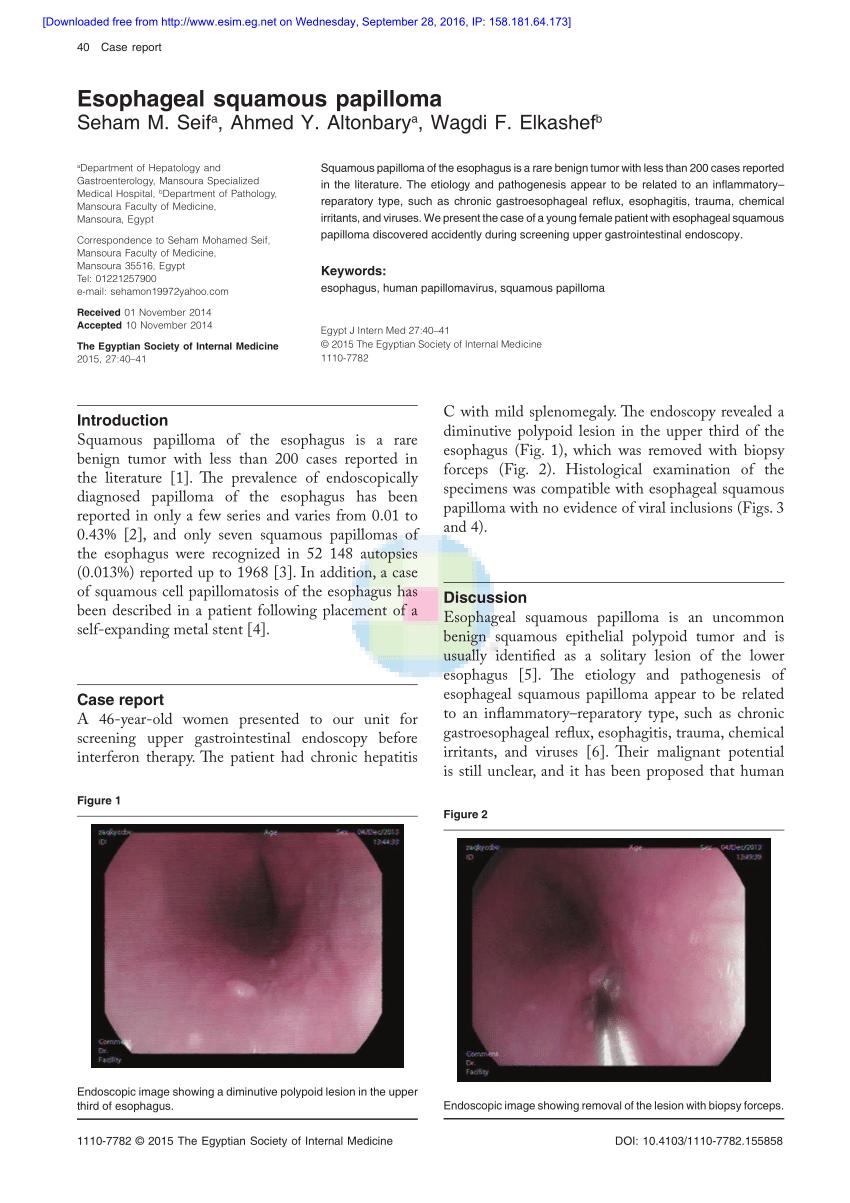 esophageal papilloma endoscopy cervical cancer lymph node spread