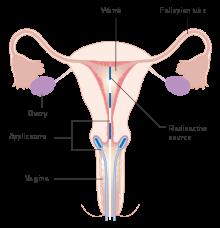 cancer de col uterin benign parazitii politie
