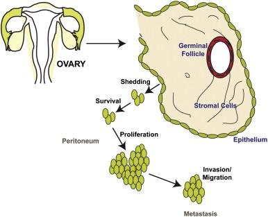 cancerul ovarian epitelial