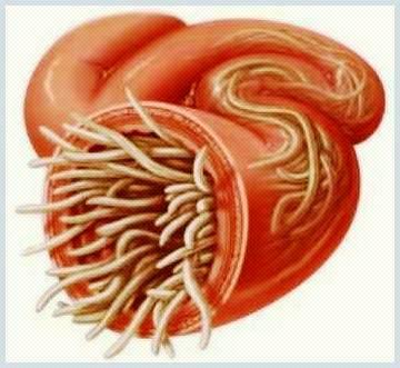 paraziti intestinali mici bladder papilloma icd 10