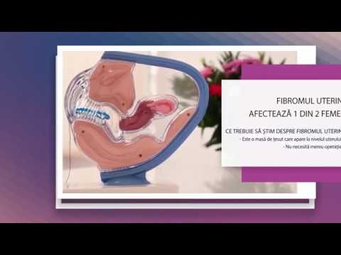 cancerul si fibromul uterin throat cancer and human papillomavirus hpv