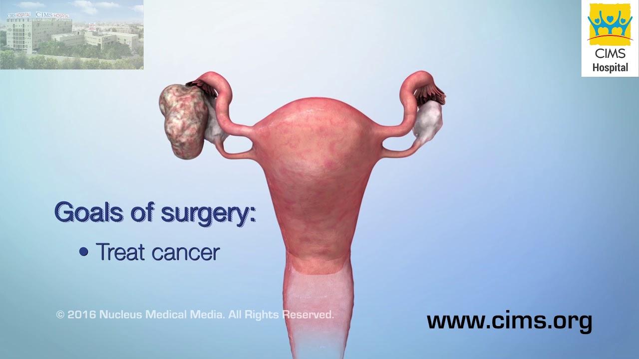 ciuperci jamilla cancer de piele carcinom scuamos