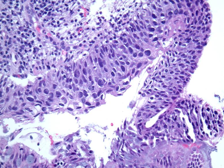 human papillomavirus pathology