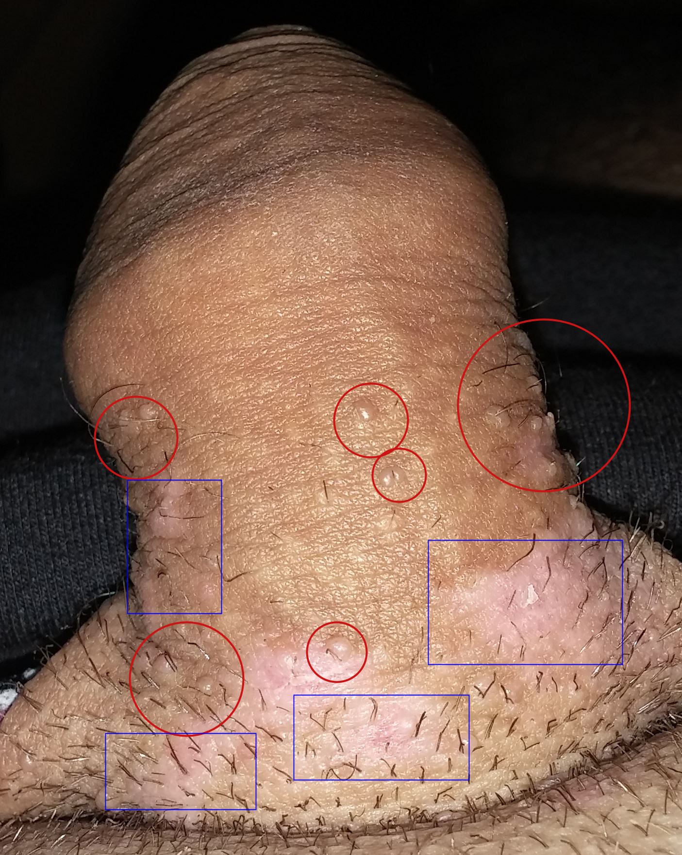 les symptomes du papillomavirus chez lhomme wart off on skin tags