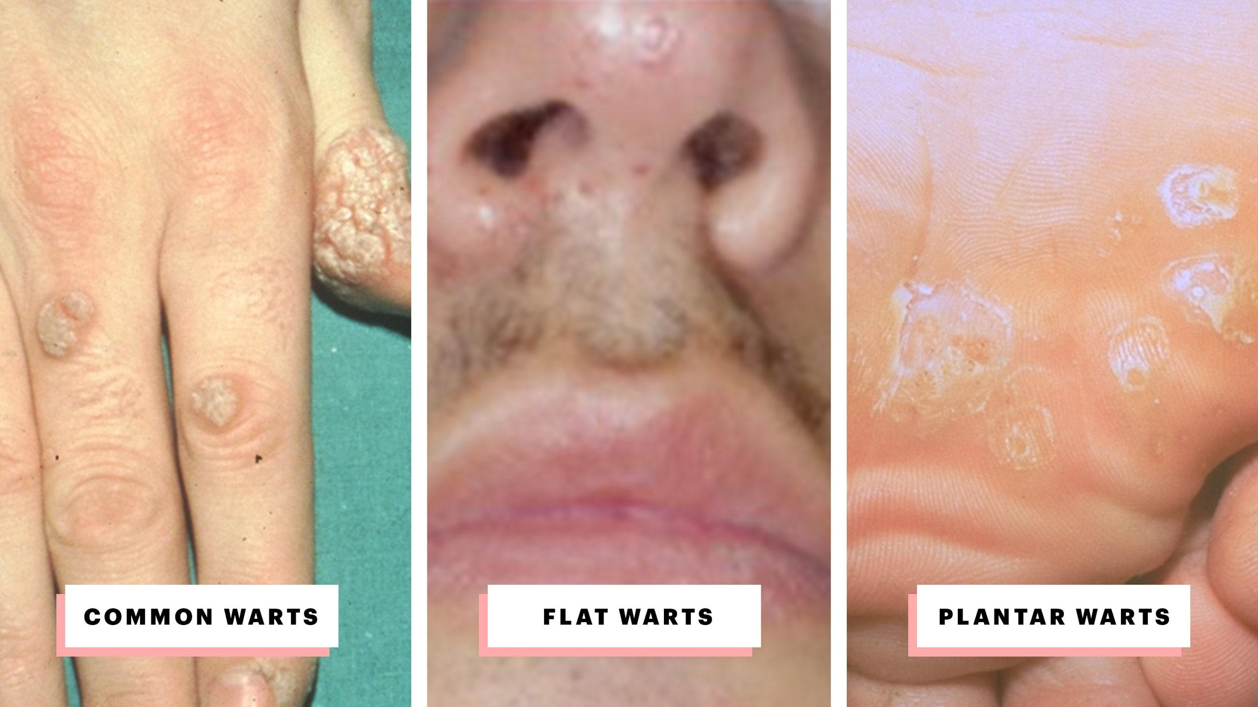 hpv nasal wart cancer de colon manifestari