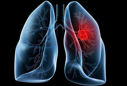 Simptomele cancerului pulmonar sunt adesea confundate cu o răceală
