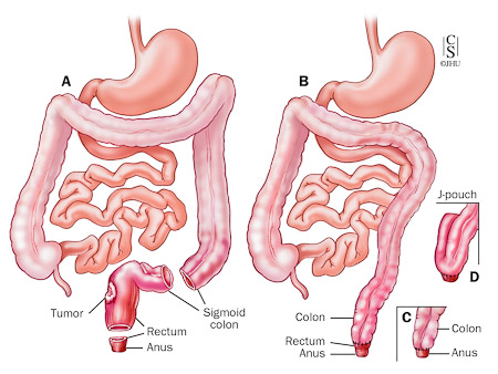 rectosigmoid cancer resection