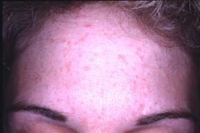 wart virus face