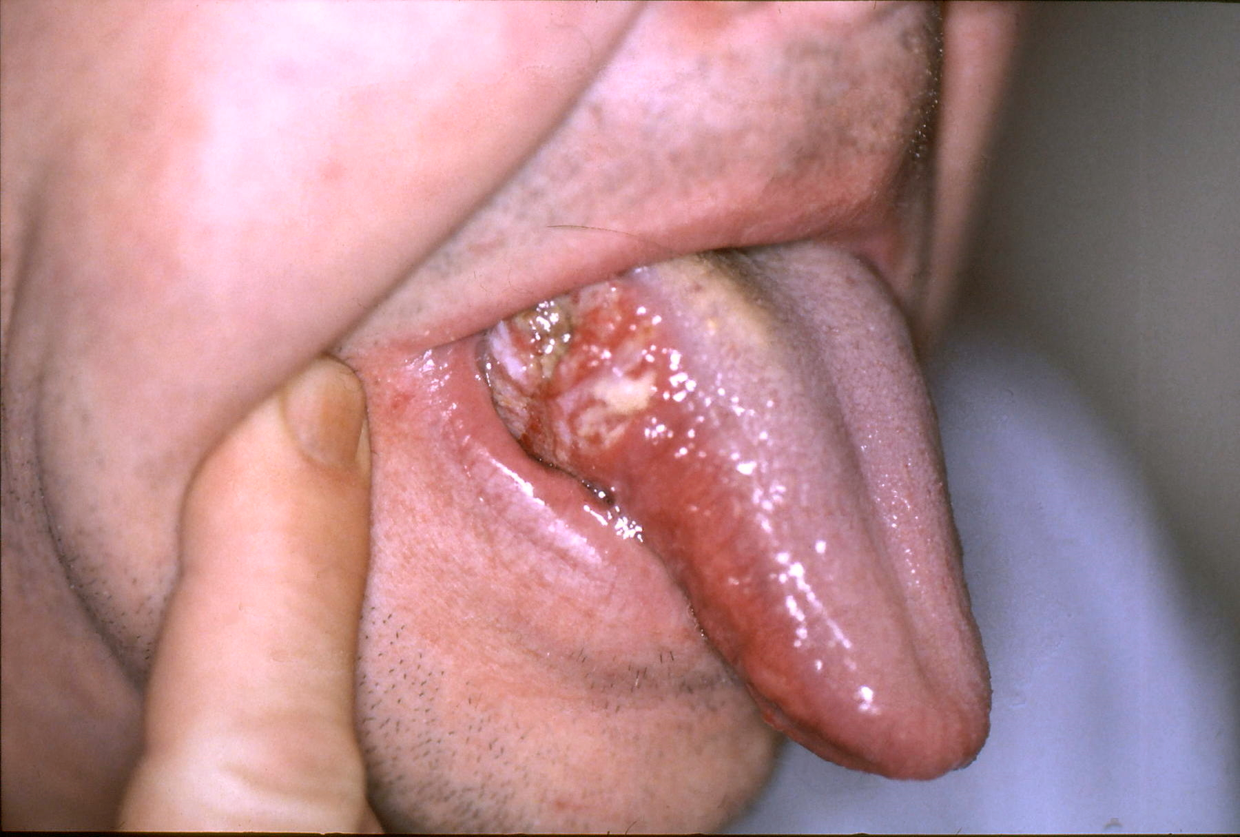 can hpv cause lip cancer verrugas de papiloma en el ano