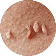 helminth treatment ivermectin