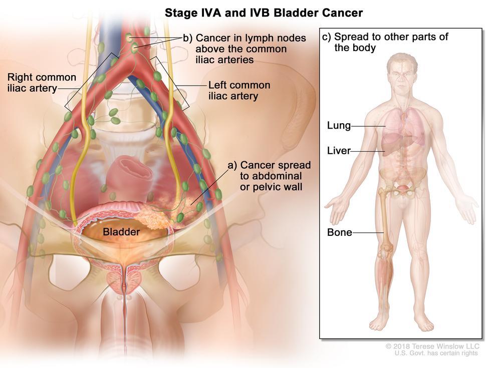 cancer abdominal cid