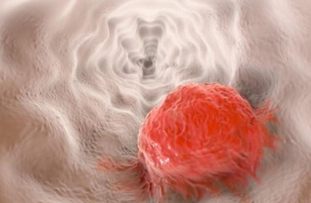 Cancer esofagian - Tot ce trebuie să ştii | Cancer