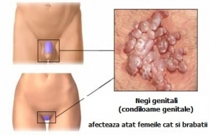 papilloma virus pe piele tratament
