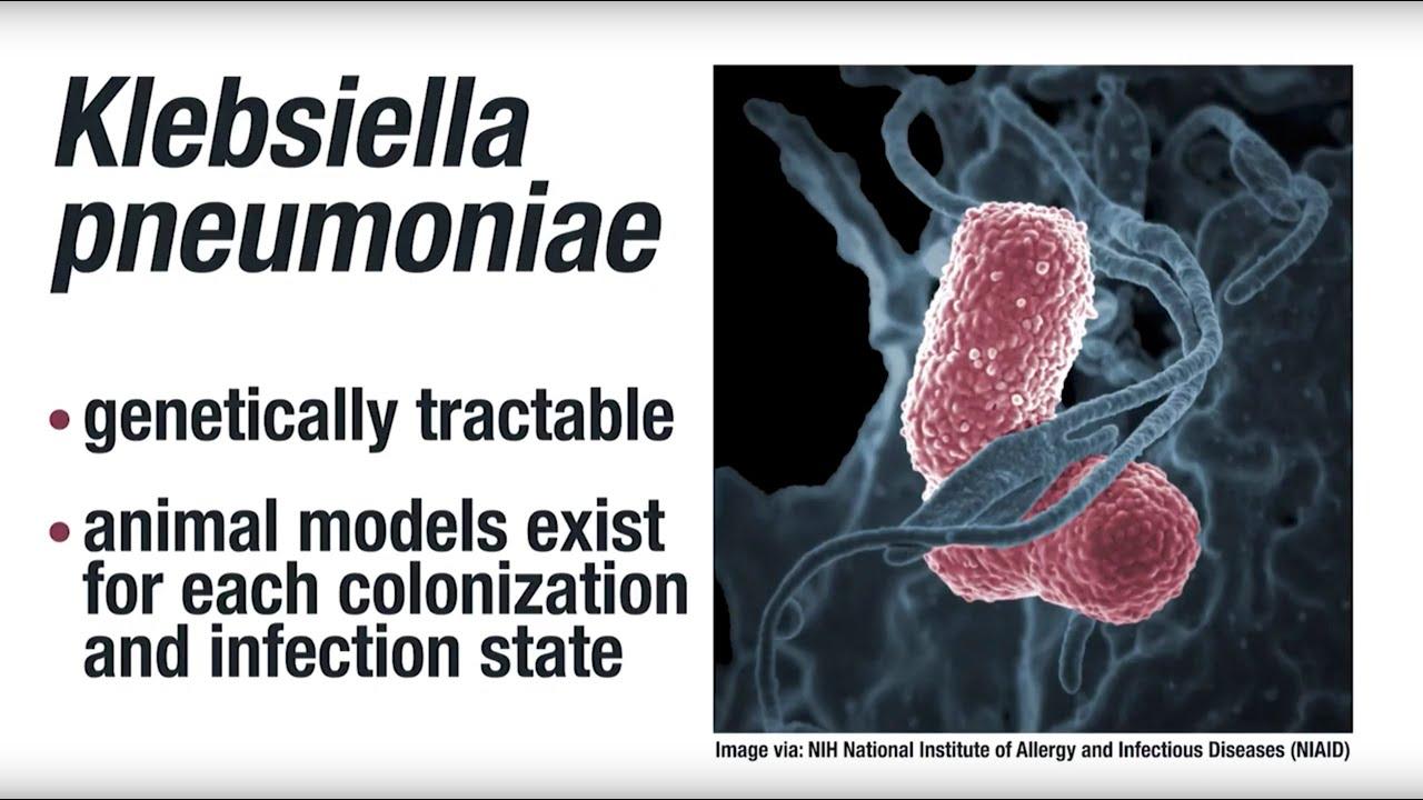 Pneumonia bacteriană