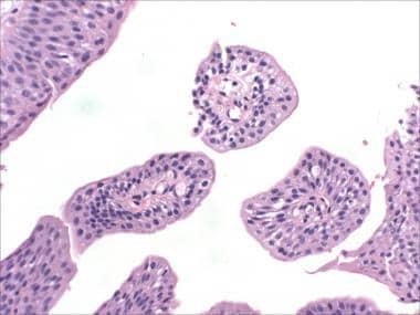 Papilloma urinary bladder histopathology,, Papilloma urothelial pathology