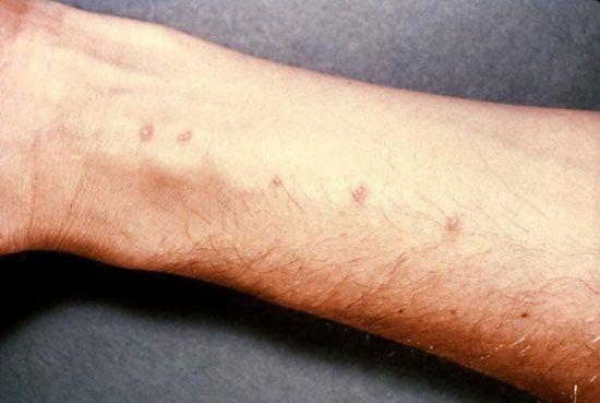 Schistosoma intercalatum-Infektionen in Afrika Saisonkrankheiten in Nigeria