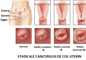 cancer col uterin ultima faza