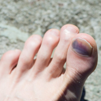 cancer on tip of toe papillary thyroid cancer graves disease
