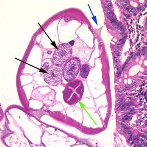 treatment for human papillomavirus during pregnancy h papillomavirus