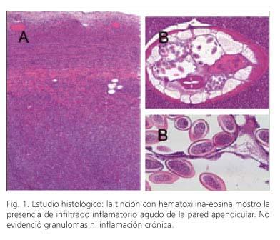 oxiuros familia papiloma laringeo gpc