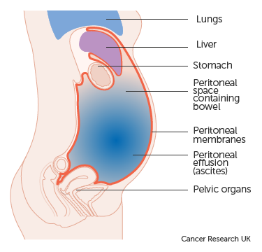 simptome viermi intestinali