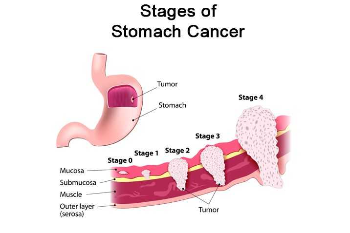 abdominal cancer causes
