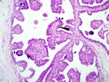intraductal papilloma pathology treatment of vestibular papillomatosis