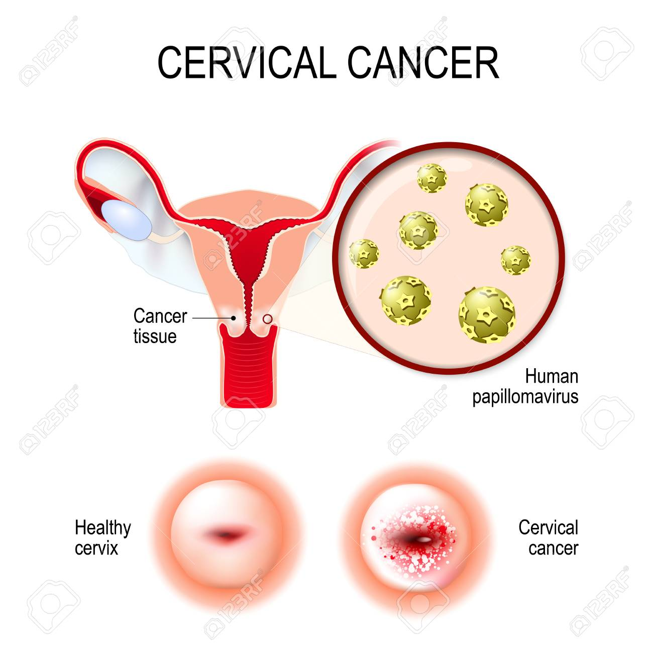 hpv related mouth cancer que es papiloma
