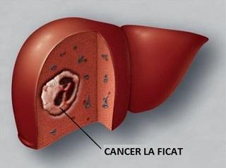 cancer ficat operatie