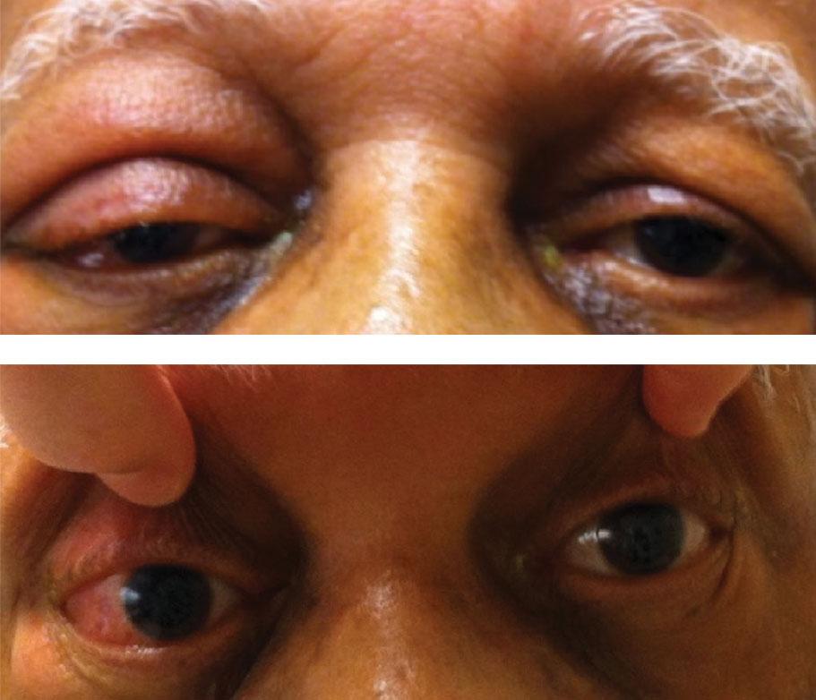 aggressive cancer behind eye