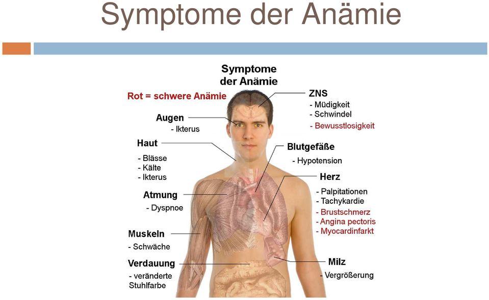 anamie klinische zeichen)