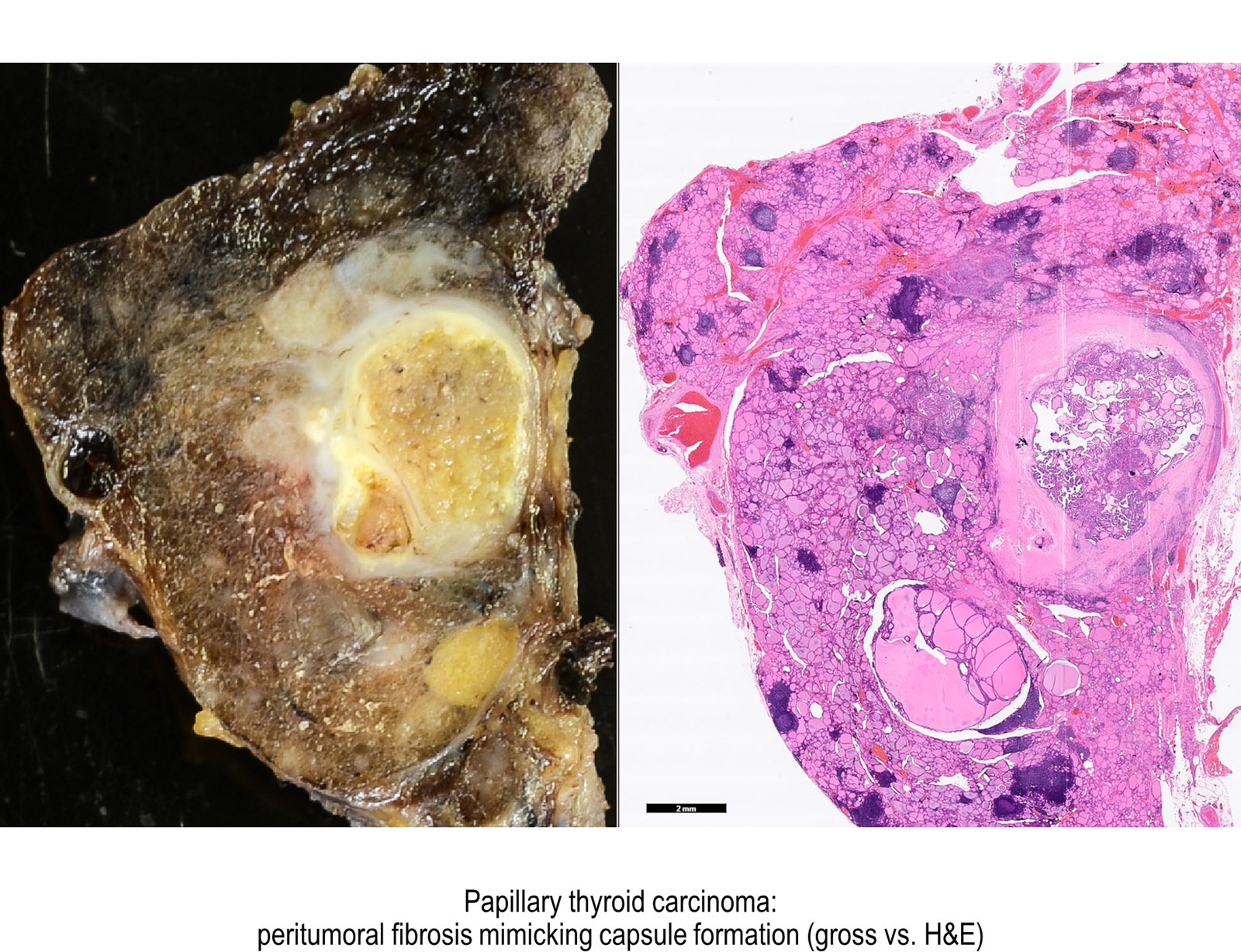 papillary thyroid carcinoma solid variant pathology hpv has cure