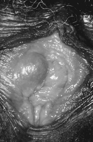 vestibular papillomatosis laser treatment