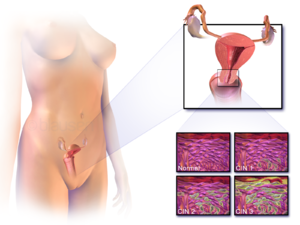 aggressive cancer survival rates papilloma of bladder
