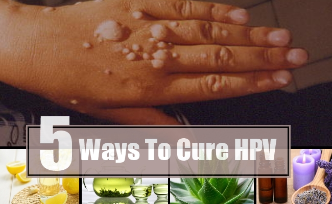 hpv virus and treatment)