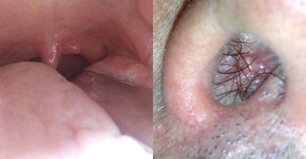 papillomavirus gola diagnosi tratamentul oxiurilor la adulti