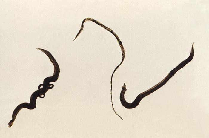 schistosomiasis mansoni