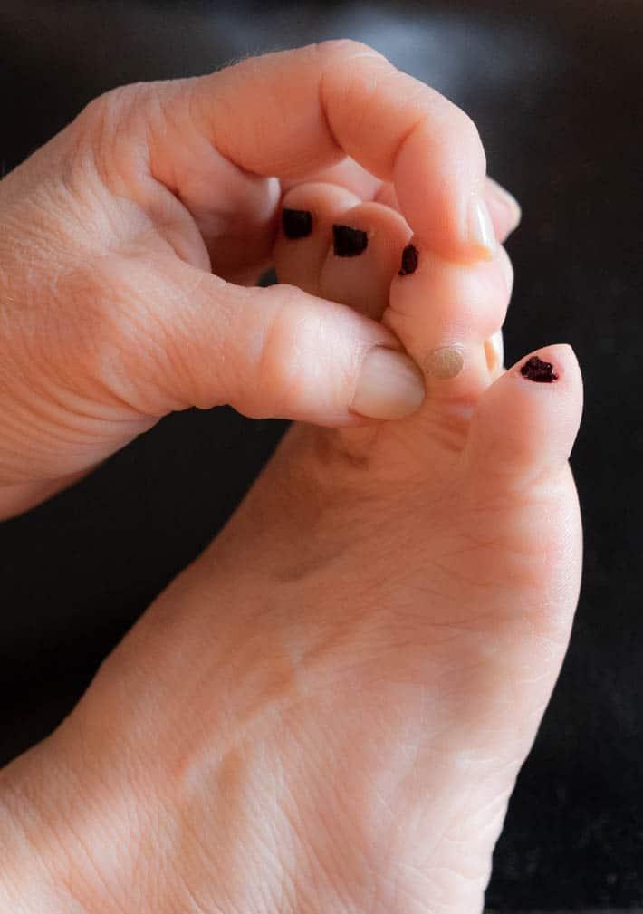 wart on foot 4 year old virus hpv verruga