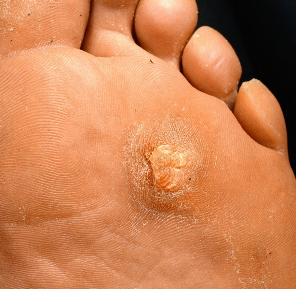 Dornwarzen am Fuß entfernen | Warts remedy, Feet care, Get rid of warts