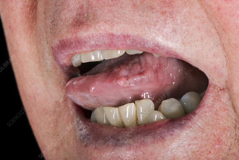 removing papilloma from tongue papiloma en la boca imagenes