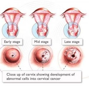 hpv and cancer symptoms