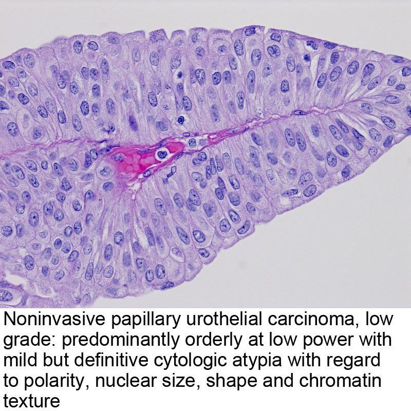 papillary urothelial carcinoma ureter papiloma humano en la boca causas