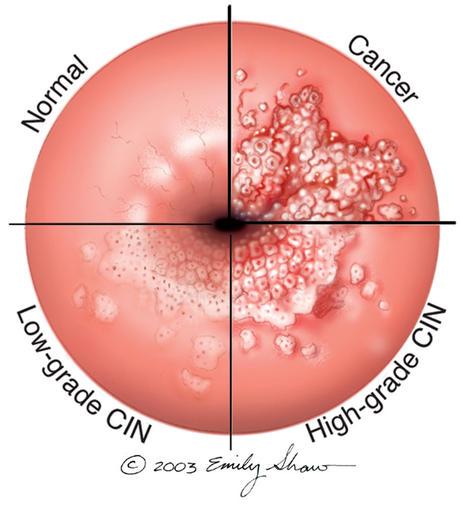 human papillomavirus (hpv) cancer