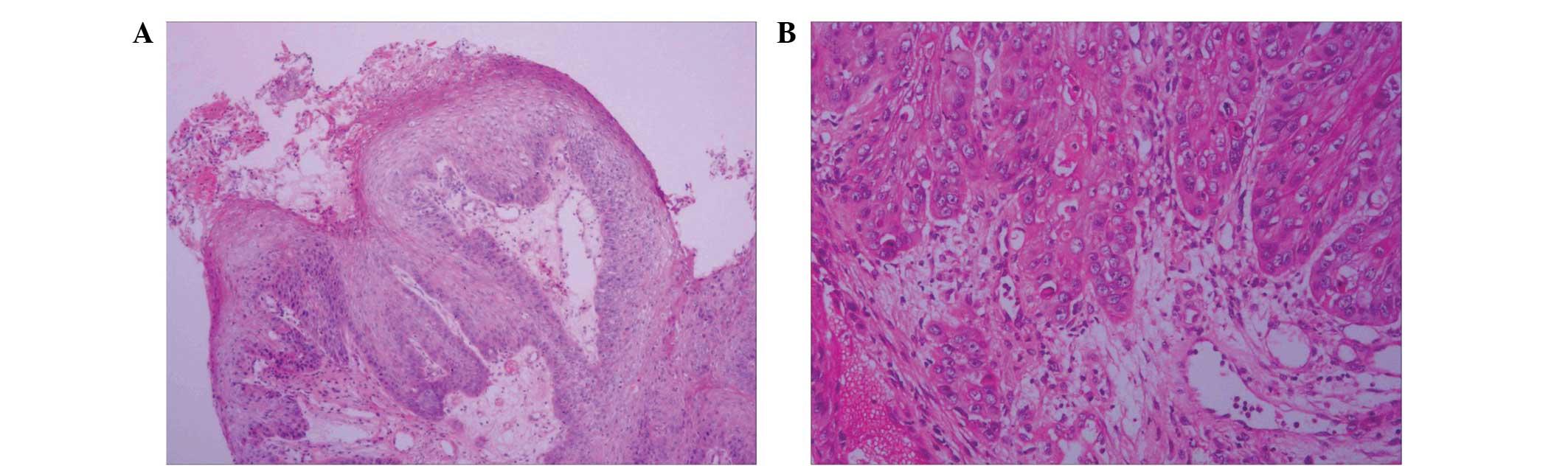 laryngeal squamous papilloma cancerul de vezica urinara tratament