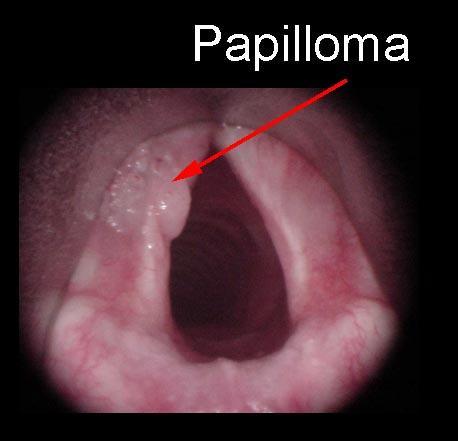 papillary thyroid cancer external beam radiation