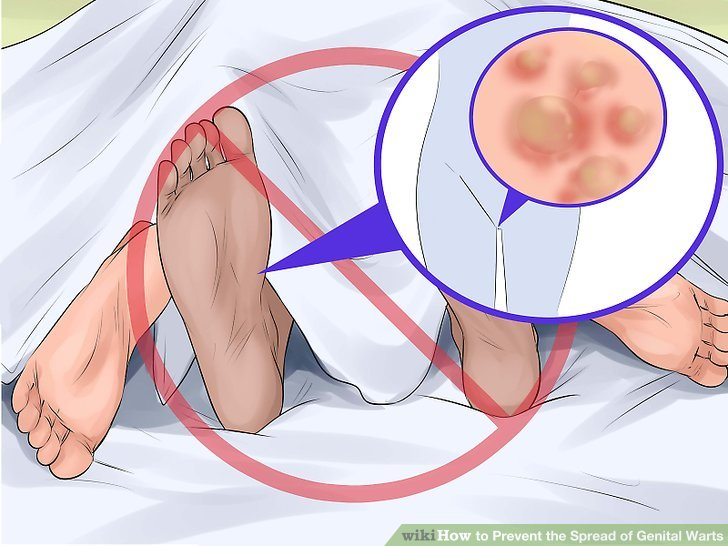 hpv warts prevention