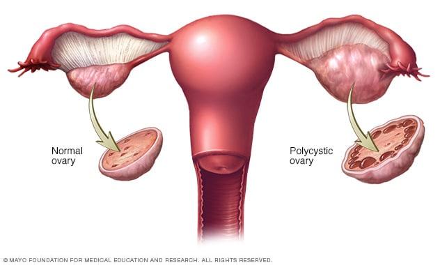 papiloma utero tratamiento papilloma virus alle corde vocali