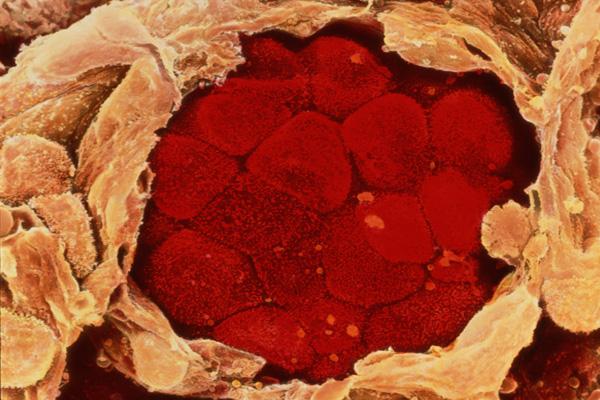 CANCERUL PULMONAR, depistat cu o simplă ANALIZĂ de SÂNGE