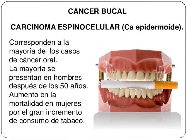 cancer bucal y tabaco cancer san formula as